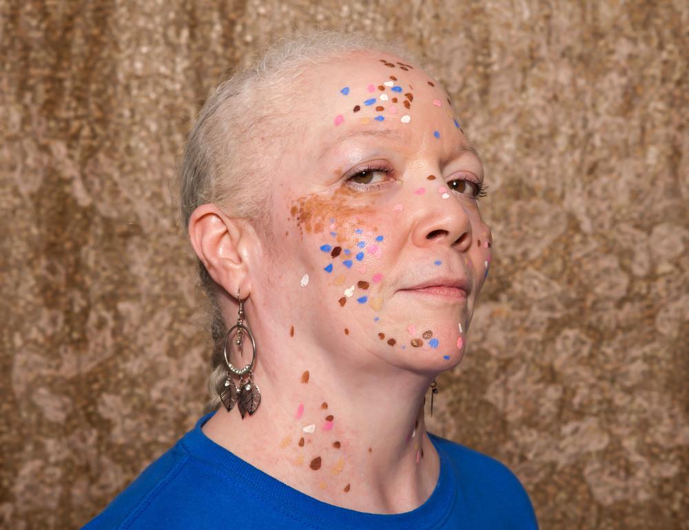 Vitiligo portrait Terry 2.jpg