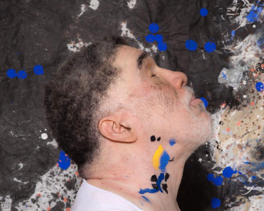 Vitiligo portrait v.jpg