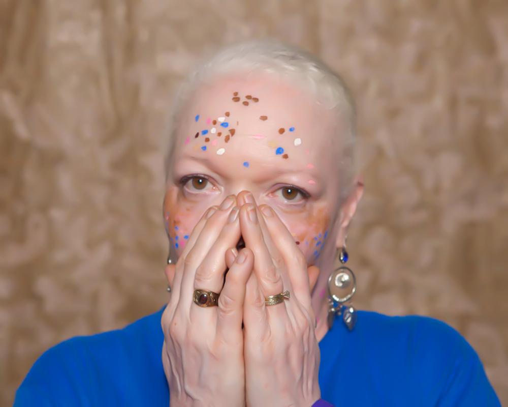 Vitiligo portrait Terry.JPG
