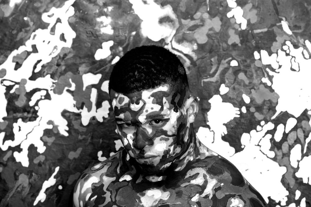 Vitiligo Curtis McDanielStephanie Corne.jpg