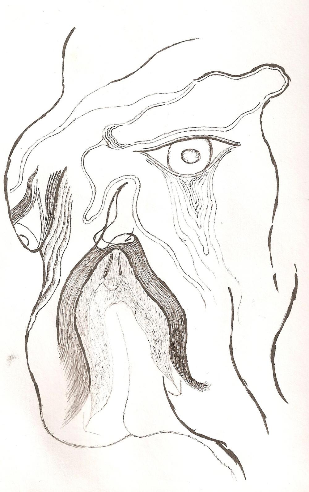 Droopey Eye
