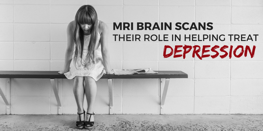 MRI Brain Scans: Their Role In Helping Treat Depression