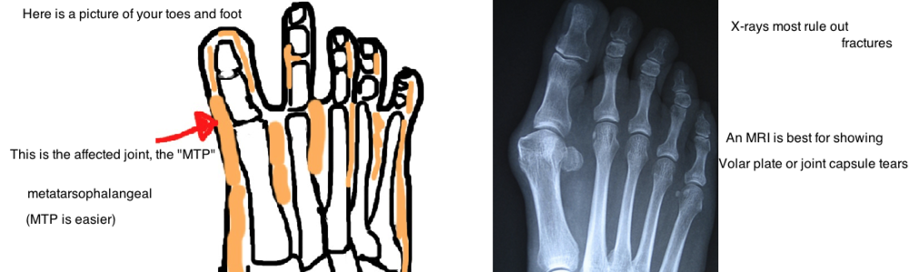 Turft Toe affects the MTP joint (metatarsophalangeal)