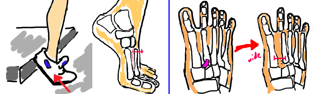 Lisfranc Injury, Lisfranc Fracture : the alignment of your metatarsal bones becomes abnormal.  Seen on CT or XRAY.