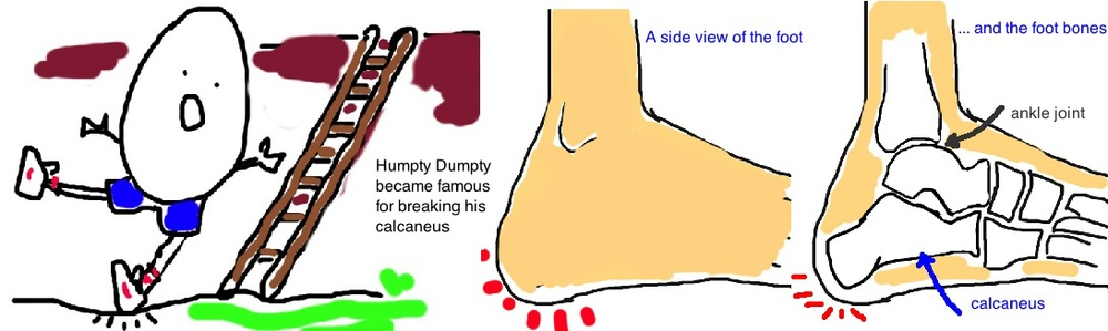 Calcaneus Fracture, Broken Heel bone