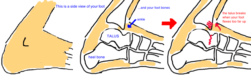 Talus Fracture, Broken Talus: it breaks when your foot is dorsiflexed
