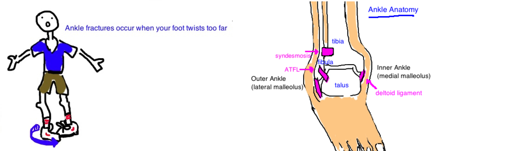 Broken Ankle: Its either a distal fibula fracture (lateral malleolus fracture) or a bimalleolar fracture