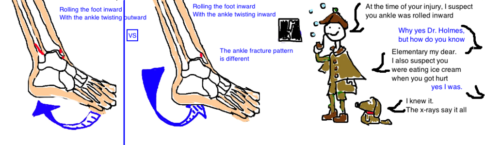 Broken Ankle: Different fracture patterns occur based on the position of the foot during the injury