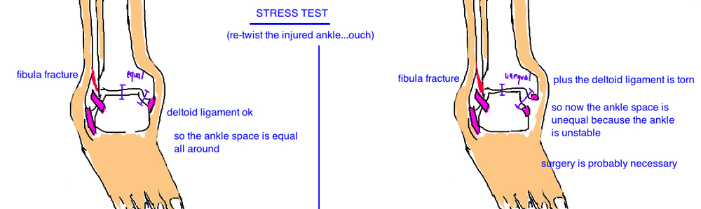 "Broken Ankle: A stress test can determine whether the deltoid ligament was injured (indicated a ""bimalleolar equivalent fracture"")"