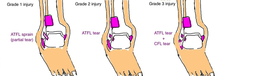 Stages of Ankle Sprain: The ATFL or CFL Ligament is partial tear, full tear, or the worst, both are torn.