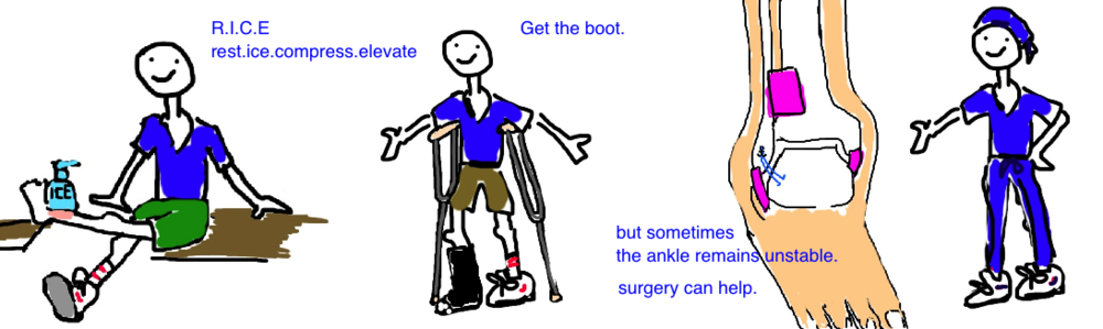 Ankle Sprain Treatment: RICE and/or Walking Boot, if that fails to help then maybe surgery ( tight-rope )