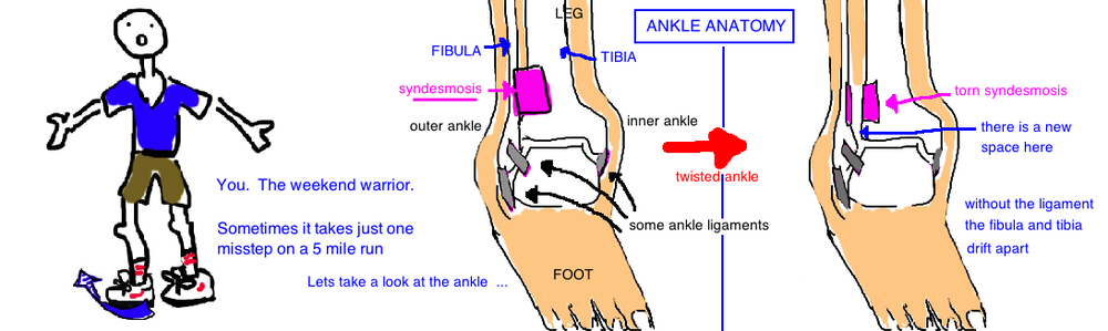 High Ankle Sprain ( Syndesmosis Injury ) occurs with a twisting injury.