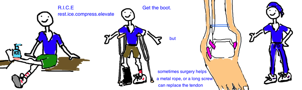 High Ankle Sprain ( syndesmosis injury) is treated with RICE, and/or a boot, maybe surgery ( tight-rope )