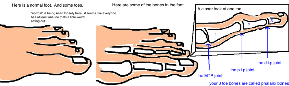 Before looking at toe deformities, lets look at a normal toe: the MTP joint, PIP joint, DIP joint.  One metatarsal bone (forefoot bone) and Three phalanx (toe bones)