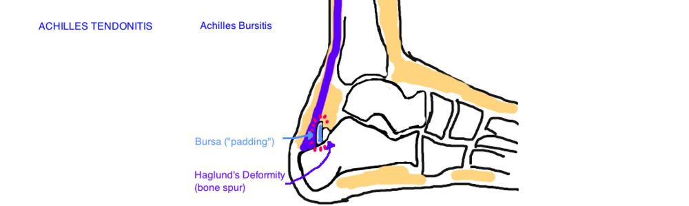Achilles Buritis: A Haglund's Deformity is a bone spur that irritates the bursa causing inflammation.