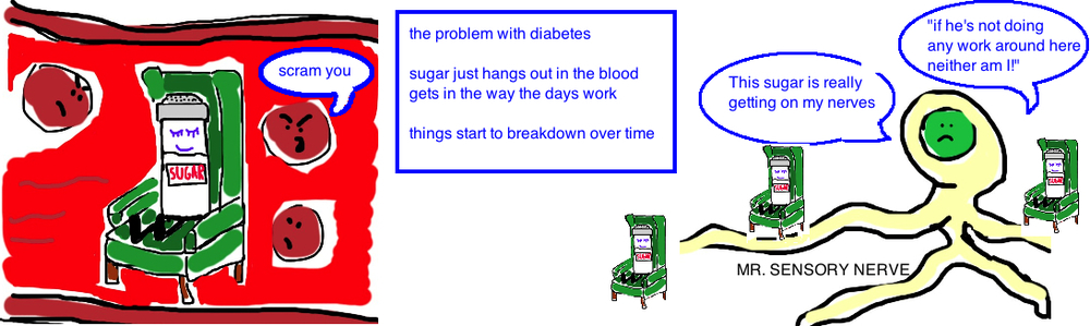 Diabetic Foot: Diabetic Neuropathy occurs because sugar damages the nerves.