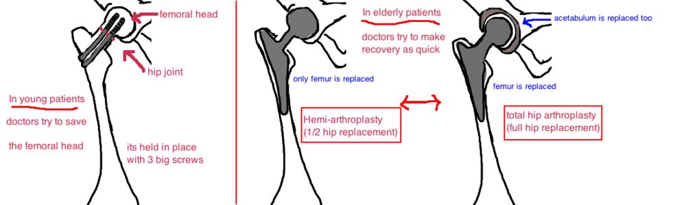 broken hip hip fracture femoral neck fracture treatment