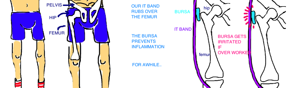 greater trochanteric bursitis hip bursitis troch bursitis runners hip it band inflammation