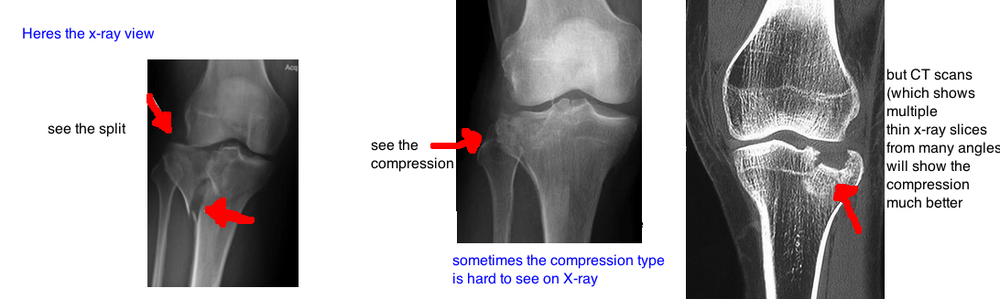 medial femoral condyle defect causes