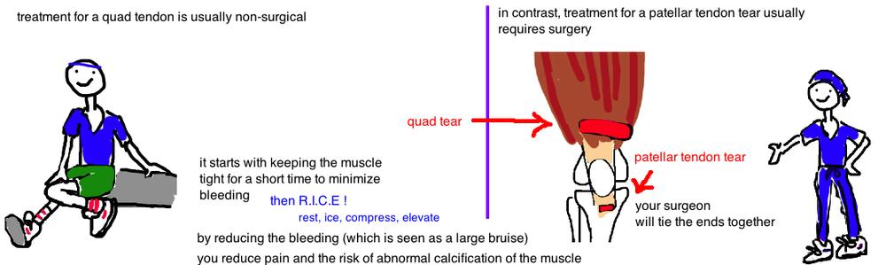 quadraceps muscle tear patellar tendon tear