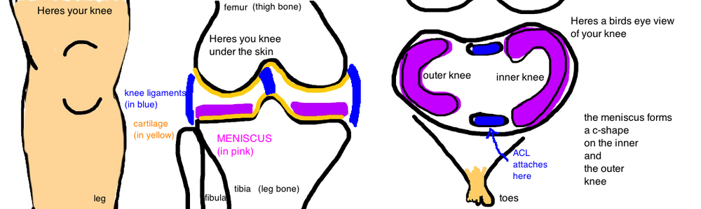 knee anatomy meniscus tear