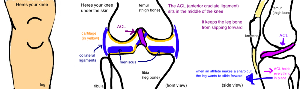 ACL anterior cruciate ligament tear