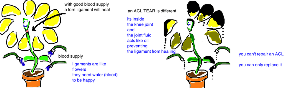 acl tear cannot heal on its own