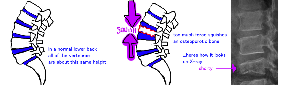 spine compression fracture vertebrae osteoporosis fracture