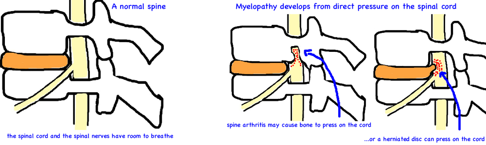 cervical myelopathy spinal cord injury in neck anatomy