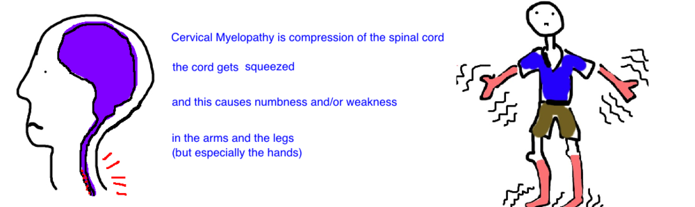 cervical myelopathy compression of the spinal cord