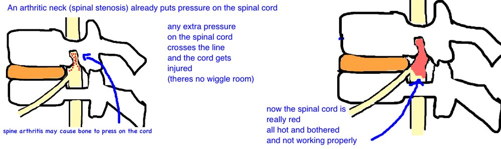 central cord syndrome occurs in underlying spinal stenosis