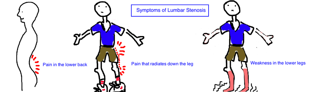 symptoms of lumbar stenosis