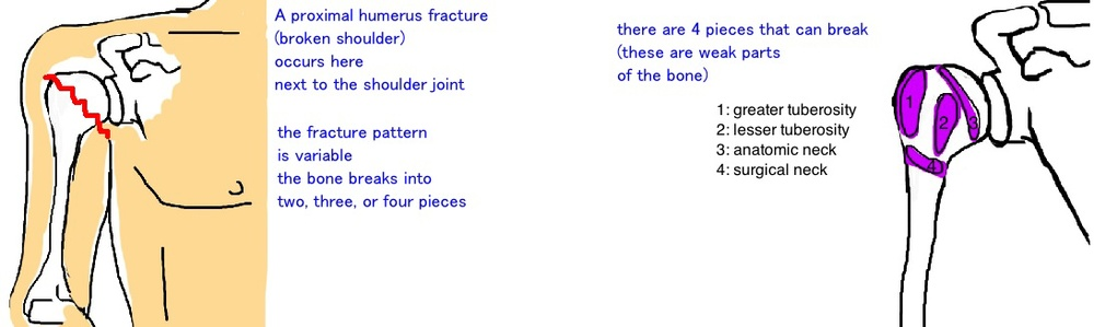 classification of proximal humerus fracture broken shoulder