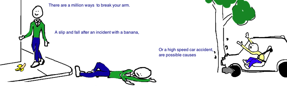 mid-shaft humerus fracture broken arm banana fall