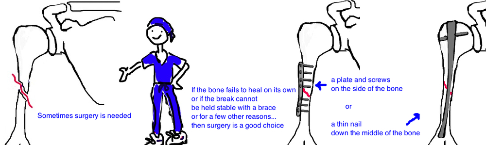 surgical treatment for midshaft humerus fracture broken arm surgery
