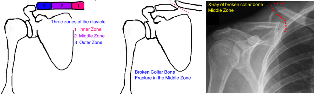 broken collar bone clavicle fracture x-ray diagnosis