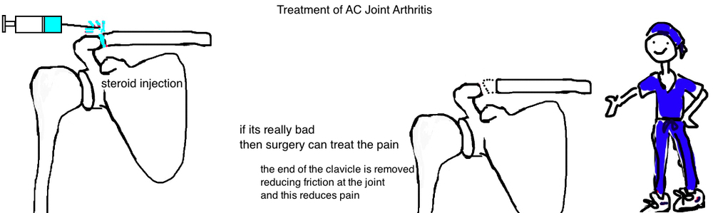 treatment of AC arthritis steroid injection and resection of distal clavicle
