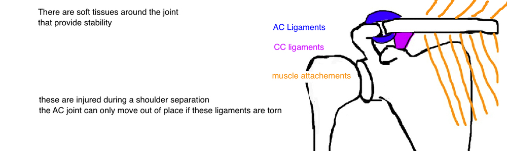 ligament tear causes AC separation shoulder separation