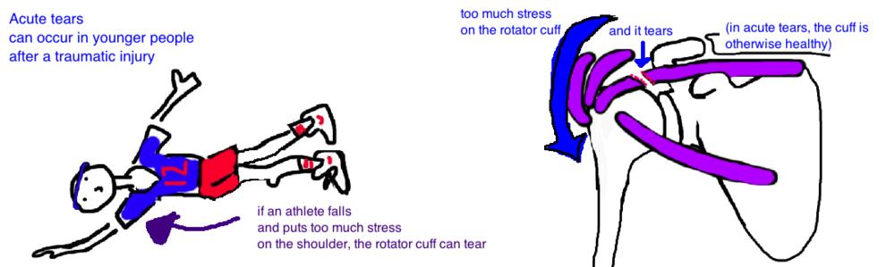 rc tear