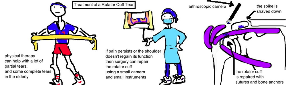 treating a rotator cuff tear