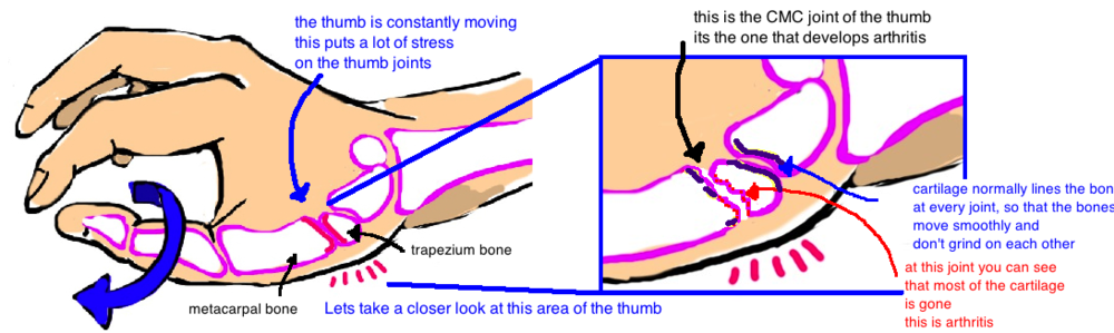 thumb arthritis bone talks Thumb Joints Diagram Ligament Damage in Thumb