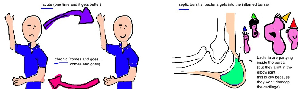 elbow bursa acute chronic septic elbow bursitis
