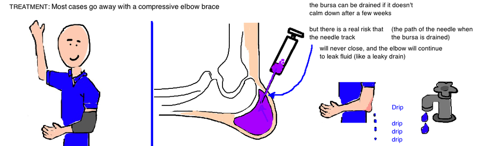 Elbow Bursitis Swollen Elbow Bone Talks