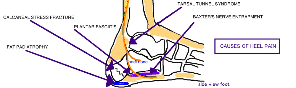 how to understand that youve broken toes