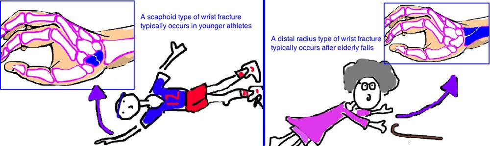 Scaphoid Fracture Bone Talks