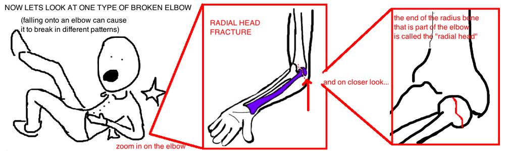 broken elbow radial head fracture