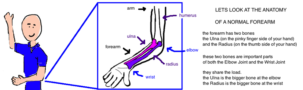 Broken Forearm - Ulna Fracture — Bone Talks