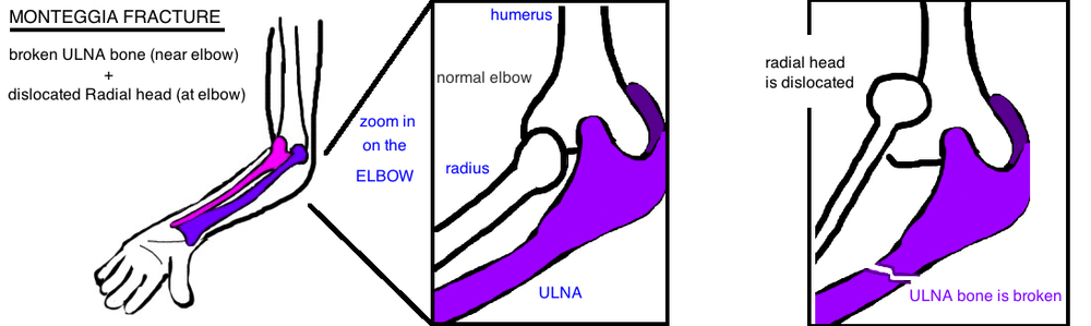 Monteggia fracture radial head dislocation and proximal ulna fracture bado classification