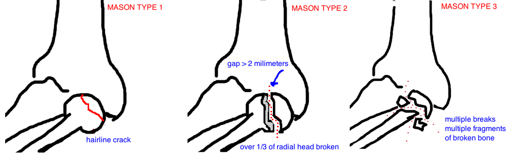 Mason Classification of Radial Head Fractures