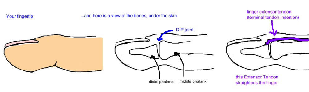 anatomy of the finger extensor tendon mallet finger anatomy